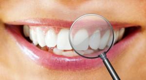 Professionelle Zahnreinigung Zahnarzt Lichterfelde