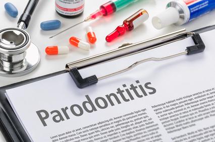 Parodentitis
